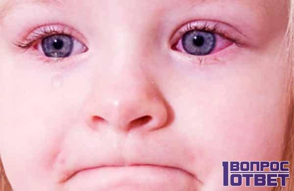 Признаки и лечение глазной болезни