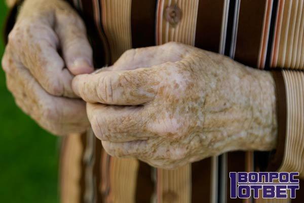 Убрать можно и пигментные пятна на руке