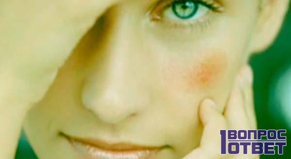 Удаление красного пятна на лице