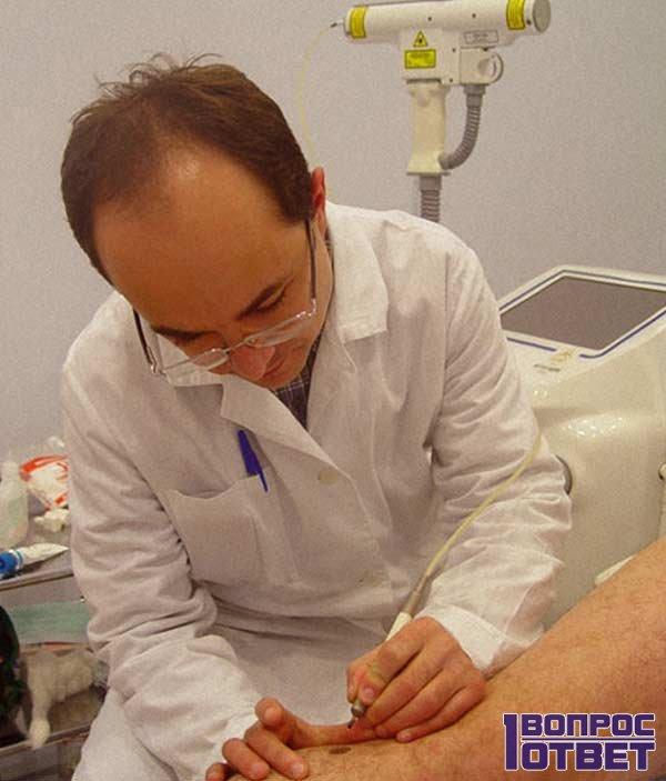 Хирургический способ удаления родинки