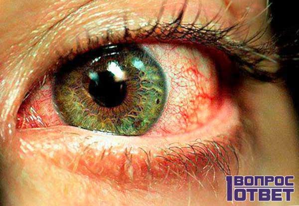 Раздраженные красные глаза болят