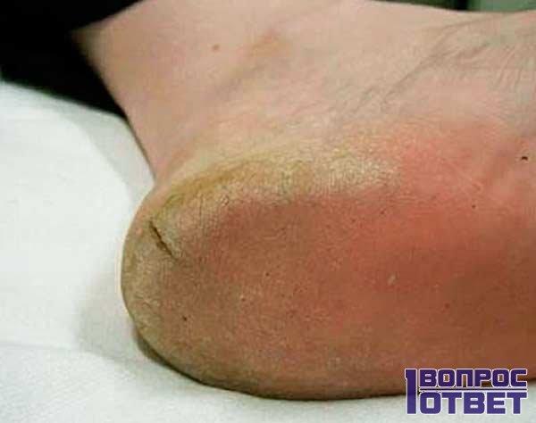 Трещины на пятке на ноге