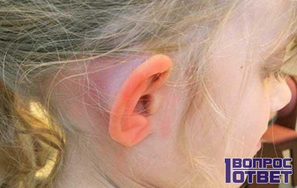 Уши покраснели у девочки