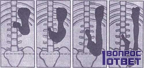 Процесс опущения органа