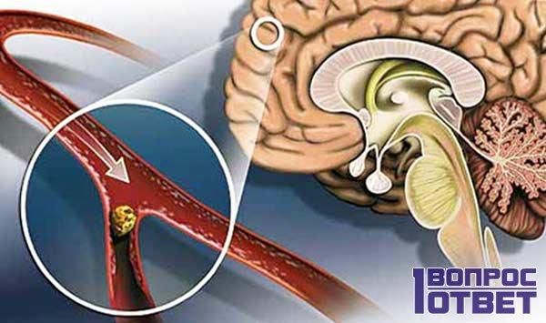 Скорость протекания инсульта