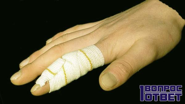 Забинтованный палец - лечение окончено