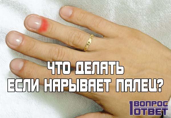 Нарывает палец на руке: что делать при этом?