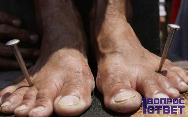 Два гвоздя в двух ногах - болезни нет!