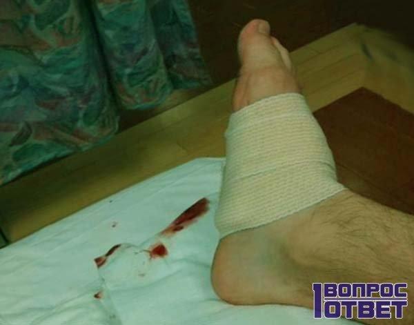 Повреждение и заражение крови в ноге