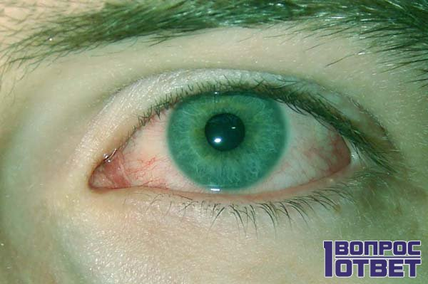 Красное око