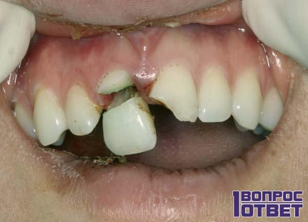 Откалывается зуб, что предвещает это