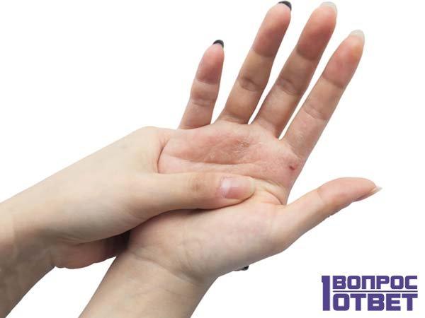 Зуд - кожное заболевание