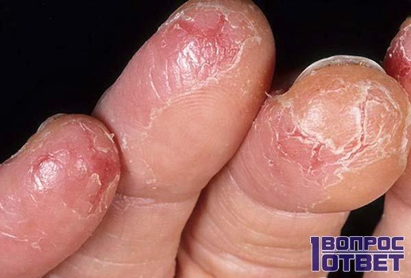 Трещины на пальцах возле ногтей