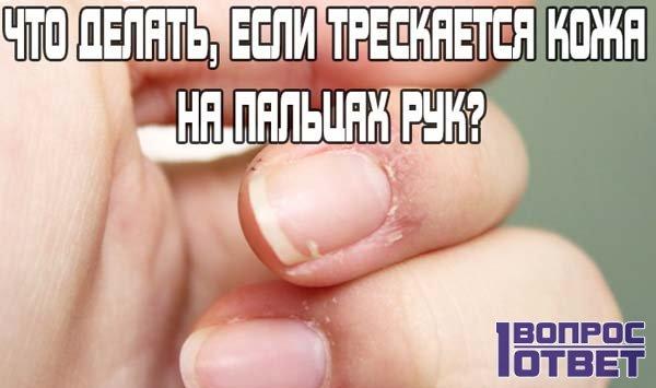 Трескается кожа на пальцах рук – что делать с этим