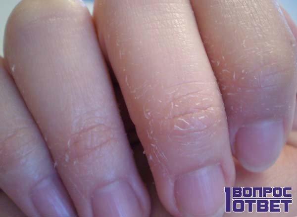 Потрескалась кожа на пальцах рук