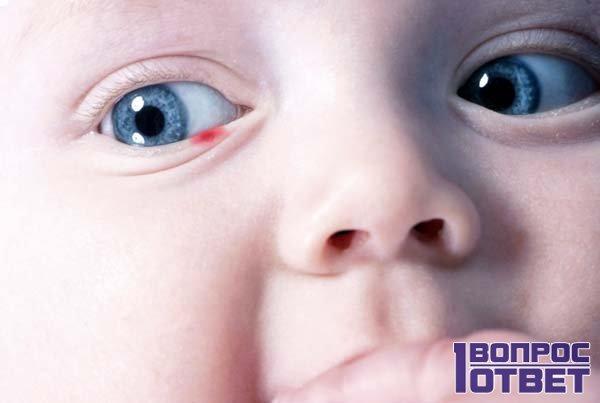 У ребенка коньюктивит на глазу