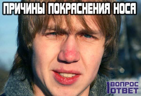 Причины покраснения носа у человека.