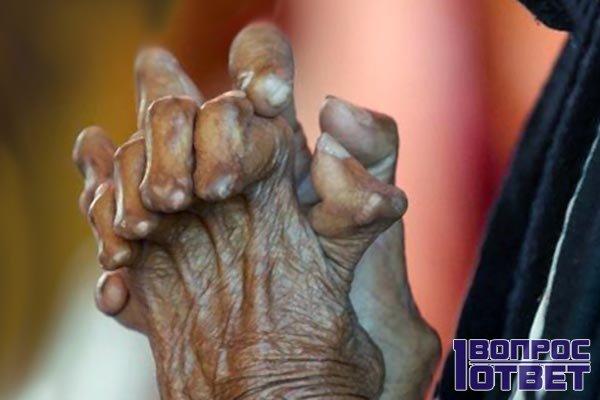 Руки прокаженной