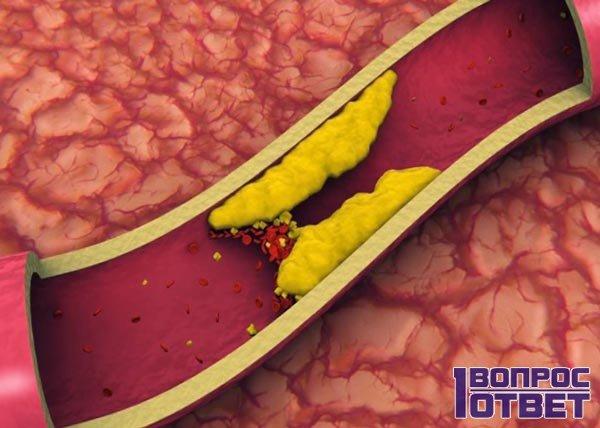 Побочные эффекты в виде холестериновых отложений