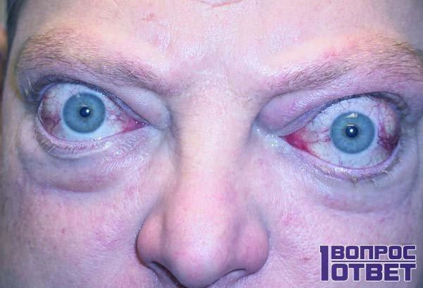 Первый признак - увеличенные глазные яблоки