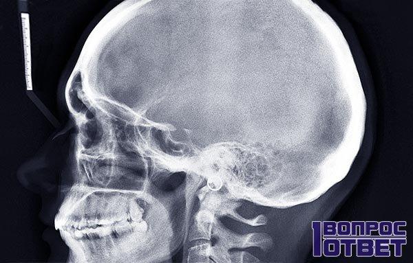 Анатомия черепа: снимок