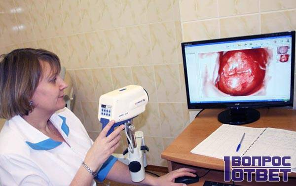 Полип эндометрия в матке на снимке