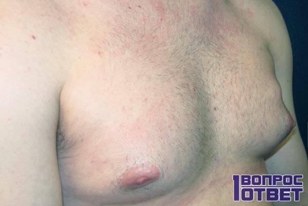 гинекомастия - увеличенная грудь у парня