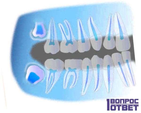 32й зуб на снимке